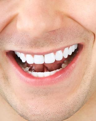Ne négligez jamais votre capital sourire !